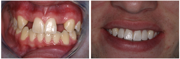 Smile Gallery - Implant Restorations