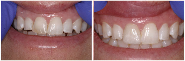 Smile Gallery - Single Crown Restoration